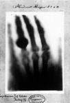Bertha's Hand with Wedding Ring