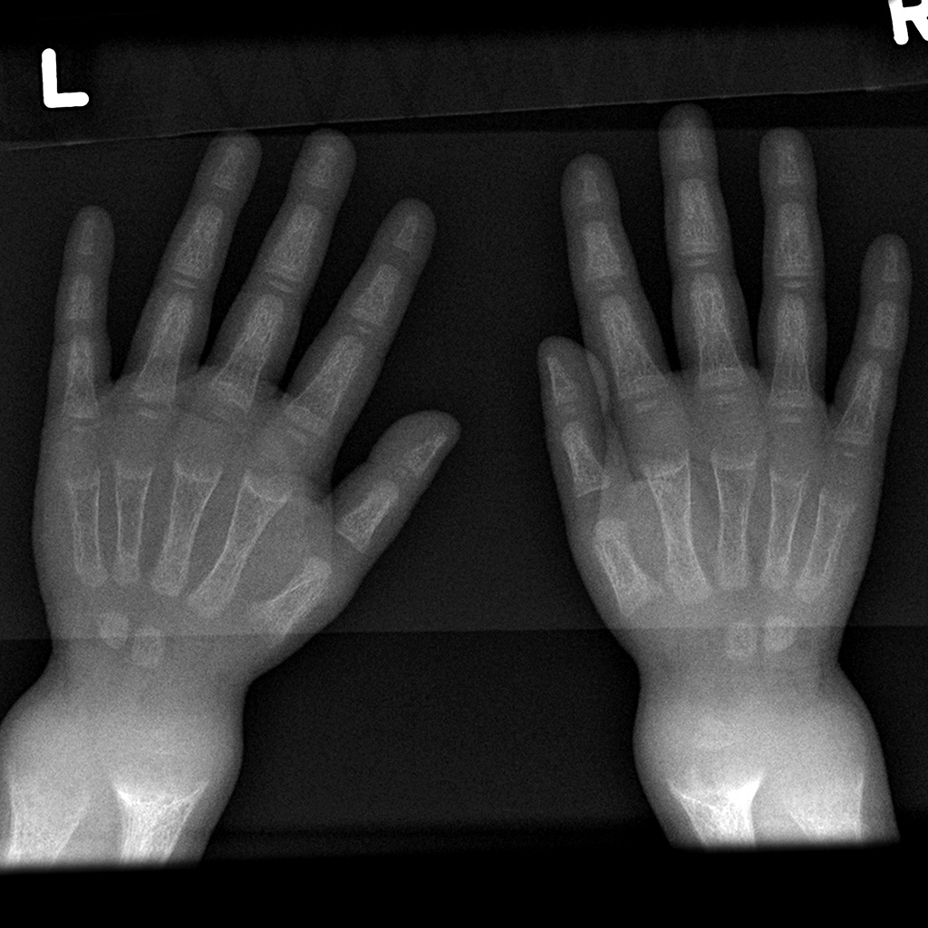 Hand X-Ray with Markers