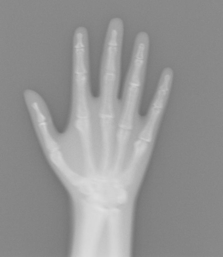 Hand X-Ray via Lumbar Spine Phantom